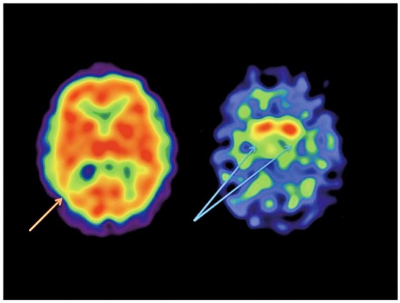 美醫生用大腦掃瞄診斷精神疾病
