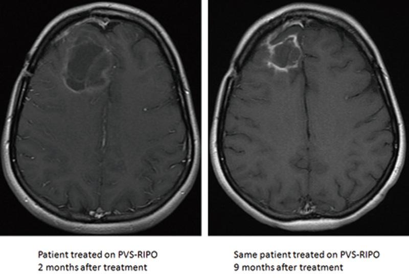 經過治療後的腦膠質瘤逐漸變小。左圖為治療後兩個月,右圖為九個月。(杜克大學)