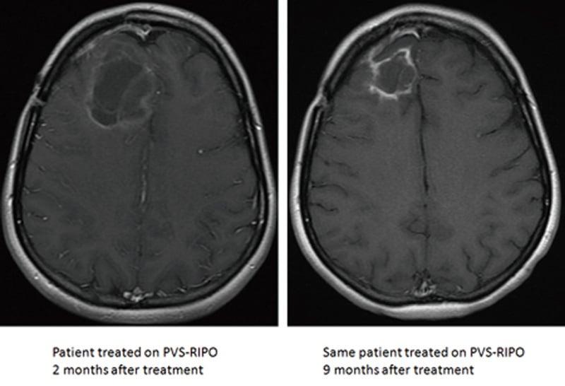 新療法以病毒治癒腦癌  待FDA批准