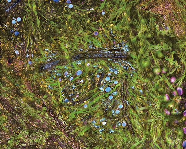 一種新的顯微鏡系統可以實時的和在分子水平對活體組織進行成像,無需任何化學品或染料。(Stephen Boppart)