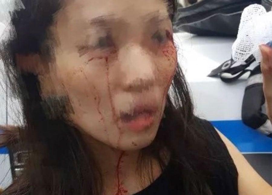 2名華裔女子在紐約法拉盛星巴克門口,無辜遭3非裔婦女毆打,並被打到滿臉是血。(視像擷圖)