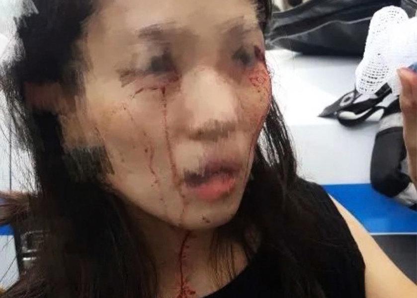 星巴克遇挑事非裔女 紐約華女被打 血流滿面