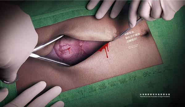 最新報告顯示,中共活摘器官的罪行還在繼續。(台灣國際器官移植關懷協會)