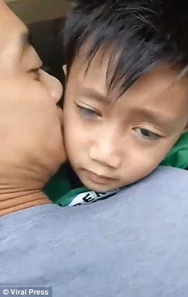 菲律賓一名6歲男童John Nathan Lising 因為每天至少打機9小時,導致臉部出現永久性痙攣。(Viral Press)