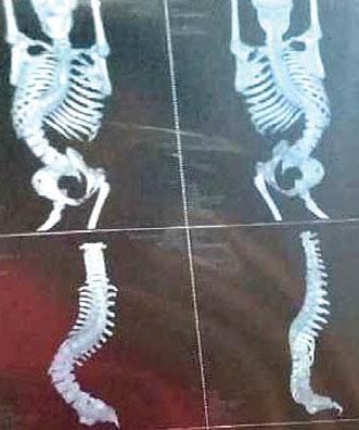 董穎接種疫苗後致截癱,之後脊椎嚴重側彎。(受訪者提供)