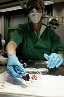 實驗室培育的器官有望用於移植