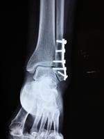 老年人遭遇骨折 增加死亡風險
