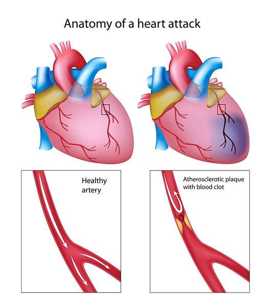 抽煙會 造成心肌梗塞