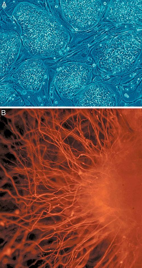 A圖(上)為未分化的人類幹細胞;B圖(下)為分化後的神經細胞。(維基百科)