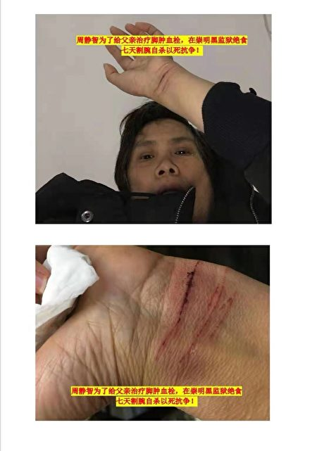 周靜智因擔心父親病重以絕食、割腕等方式抗議當局關黑監獄。(受訪者提供)