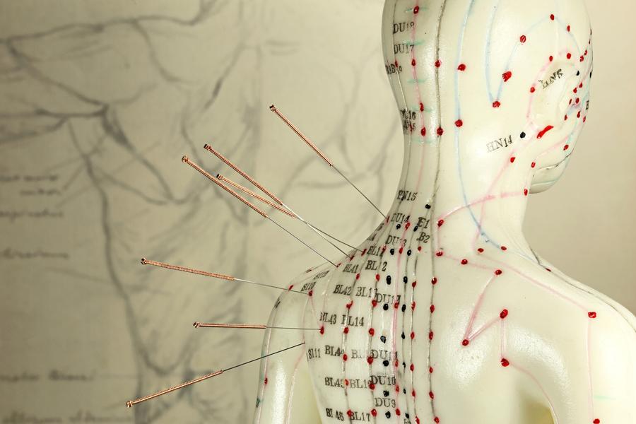 新研究:針灸對治療慢性前列腺炎有效