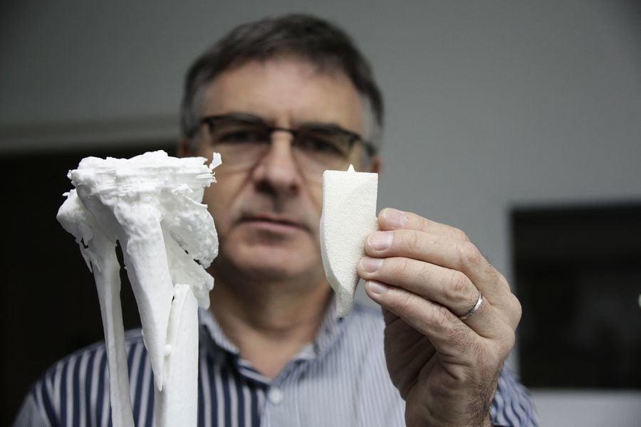 法國新人工骨技術 傷者有望免截肢(多圖)