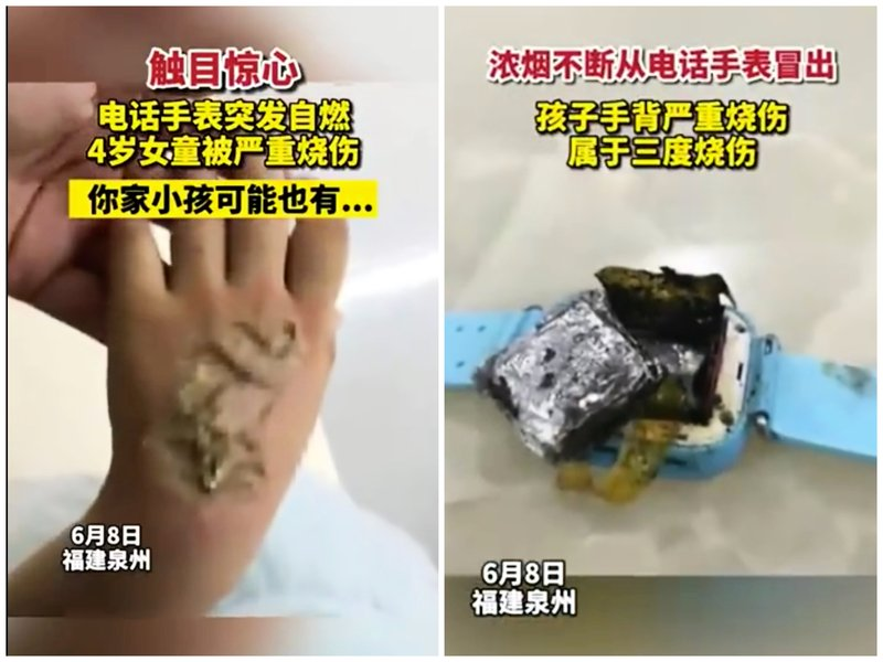 智能手錶爆炸 福建一四歲女童被嚴重燒傷