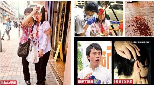 2019年9月24日,一天內先後發生三宗不尋常襲擊案,除了《蘋果》一名女記者遭4名兇徒襲擊之外,民主黨議員鄺俊宇和法輪功學員廖女士也先後遇襲,這些兇徒至今逍遙法外。(大紀元合成圖)