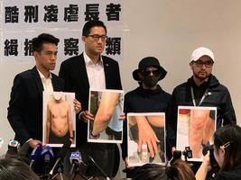 香港軍警私刑凌虐長者影片被曝光 眾人憤怒