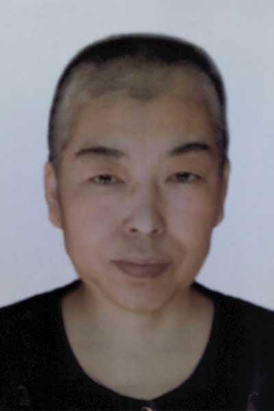 李國俊被迫害化療後的照片。(明慧網)