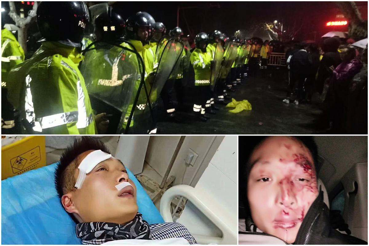 1月11日,江蘇金湖縣接種過期疫苗的兒童家長抗議升級,圖為被打傷的家長。(受訪者提供)