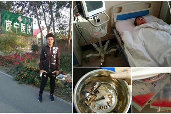遼陽青年李鑫解除強制醫療後(左)曝遼陽康寧醫院配合公安整人,他被迫吞釘子自殘後送醫治療。(受訪者提供)