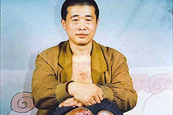 黑龍江法輪功學員王新春被迫害致殘,雙腳脫落。(明慧網)