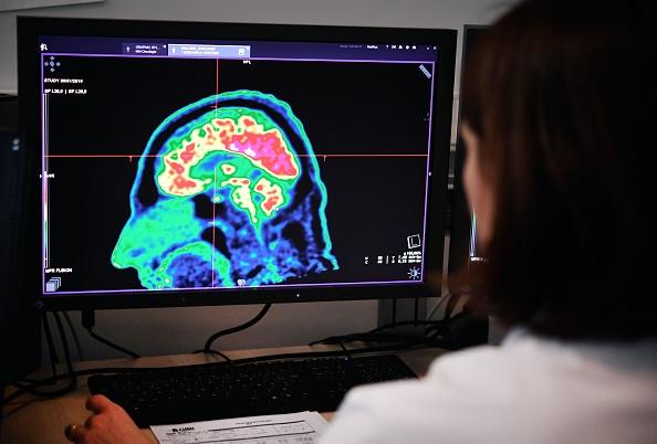 加拿大出現一種神秘腦部疾病的病例。(FRED TANNEAU/AFP/Getty Images)