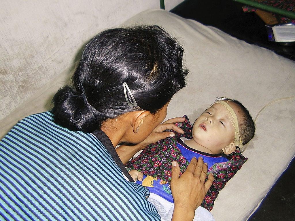 由於食物短缺,很多北韓的兒童營養不良。(Gerald Bourke/WFP via Getty Images)