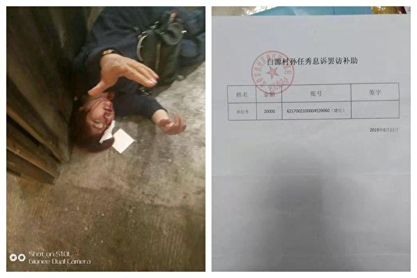 孫任秀被楠木村村書記鄒觸軍和黑社會打傷,楠木鄉政府補助了2萬元。(受訪者提供)