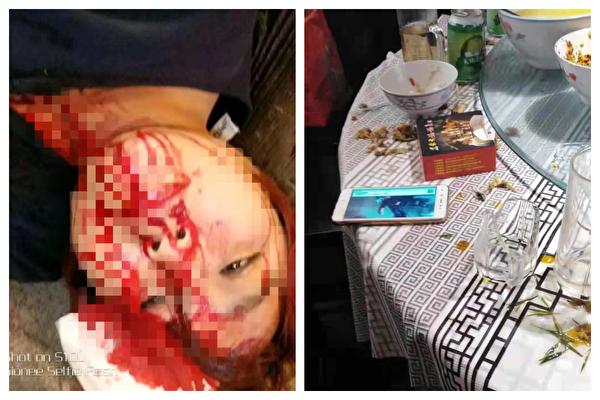 2018年2月27日,孫任秀(左圖)進京上訪,在南昌被截訪,回到宜春吃晚飯時被楠木村村書記鄒觸軍用玻璃杯(見右圖)打傷頭部,頭破血流。(受訪者提供)