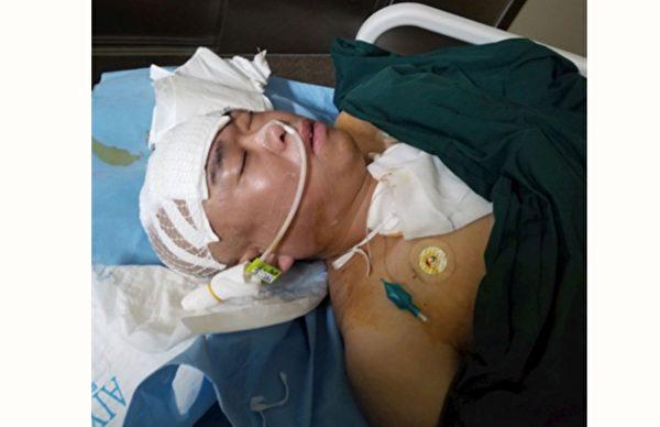 山東龍口法輪功學員姚新人被非法關押在龍口市張家溝看守所期間,被迫害出腦溢血,開顱手術後昏迷不醒。(明慧網)