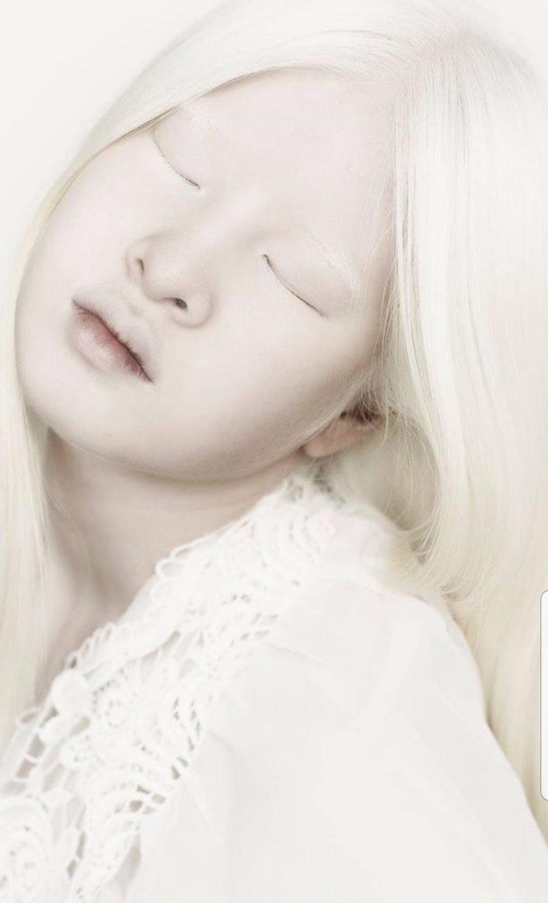 因患有白化病而遭中國父母拋棄的女孩雪麗,由於與眾不同的外表卻意外成就了自己的模特生涯,小小年紀就已登上《時尚》雜誌的版面。(Reiny Bourgonje via Zebedee提供)