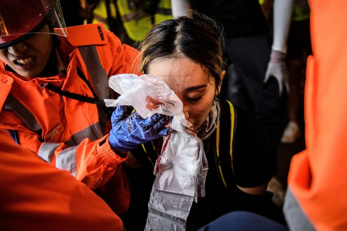 2019年8月11日,警察在灣仔發射催淚彈,一女孩的右眼被射中。(ANTHONY WALLACE/AFP/Getty Images)