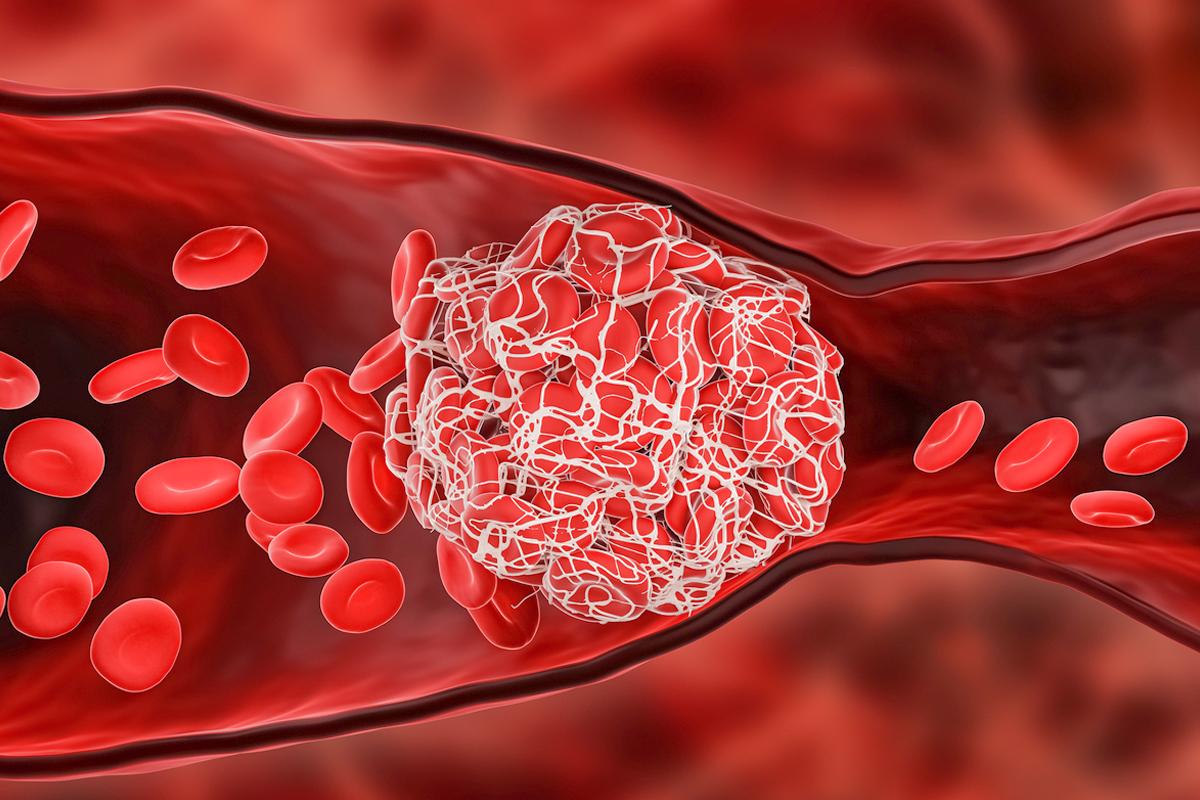 感染中共病毒(俗稱武漢病毒、新冠病毒、COVID-19)後出現腦靜脈血栓的機率,是注射AZ疫苗後的10倍,更是普通人發病率的100倍。(Shutterstock)