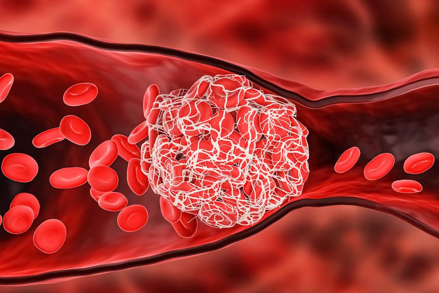 感染中共病毒後出現血栓!研究:是普通人近100倍