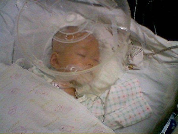 接種百白破疫苗5天後的盧征佳,在曲靖醫院重症監護室。(受訪者提供)