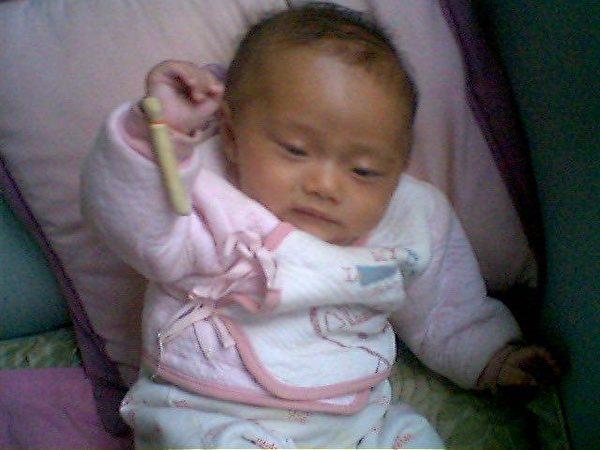 2012年8月10日,接種百白破疫苗前的盧征佳,右手能舉起來。(受訪者提供)
