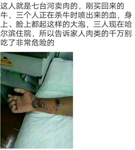 當地居民拍下感染上羊炭疽病人者的照片。(知情人提供)
