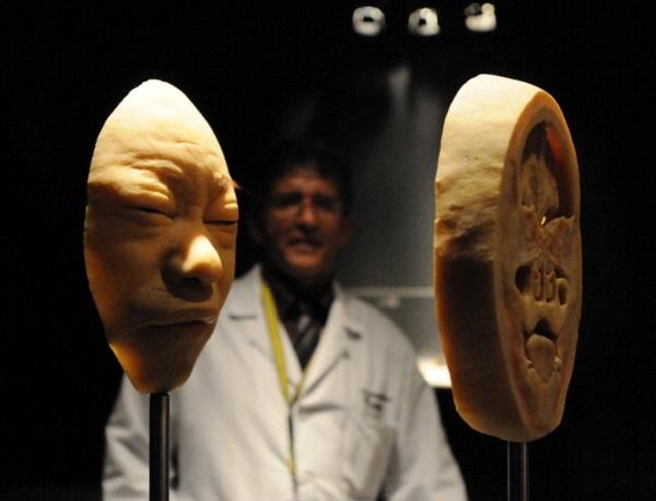 英國伯明翰國家展覽中心(NEC)舉辦的「真實人體展」(The Real Bodies exhibition)。(ORLANDO SIERRA/AFP/Getty Images)