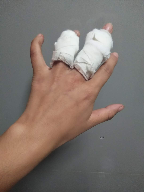 王金鳳被毆打後的傷痕。(受訪者提供)
