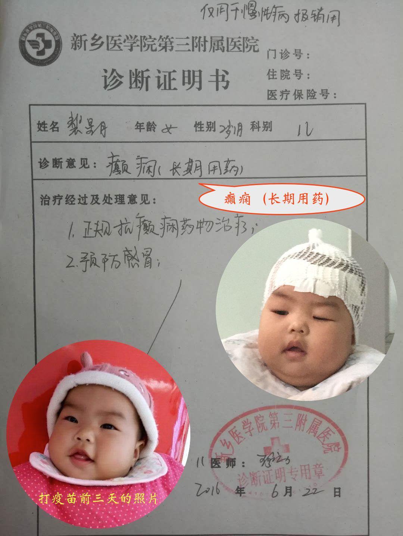 小月月於7個月大時接種疫苗後出現癲癇,需正規抗癲癇藥物治療。(家長提供)
