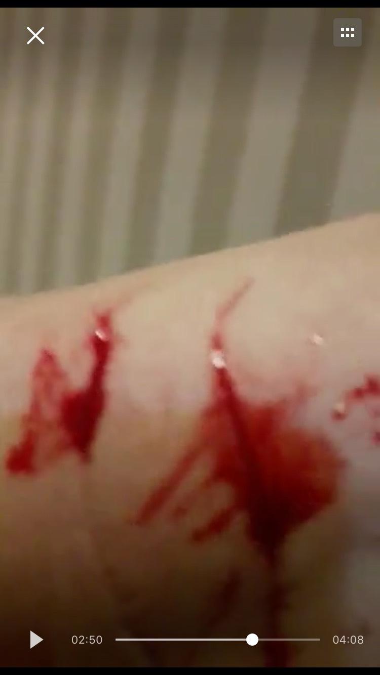 和黑保安衝突中割傷手臂。(受訪者提供)