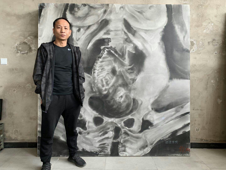 北京宋莊藝術家王鵬,因作品揭露中共實施計劃生育殺戮生命,遭到持續打壓。(受訪者提供)