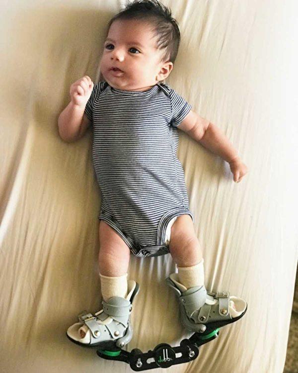 嬰兒托比亞斯每天要穿14個小時的醫療鞋。(伊麗莎‧穆迪提供)