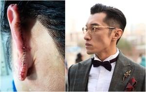 時尚大V在上海街頭阻止性侵 被咬掉耳朵