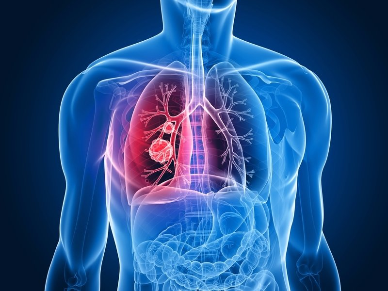從不吸煙為何得肺癌? 新研究析因由