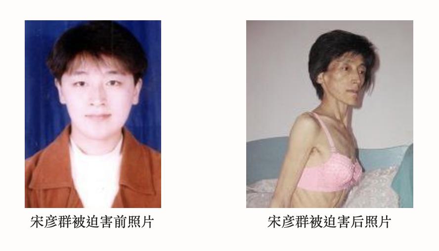 宋彥群遭中共迫害前後的照片對比。(網絡截圖)