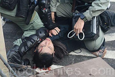 香港中大學生被港警打得頭破血流。(宋碧龍/大紀元)