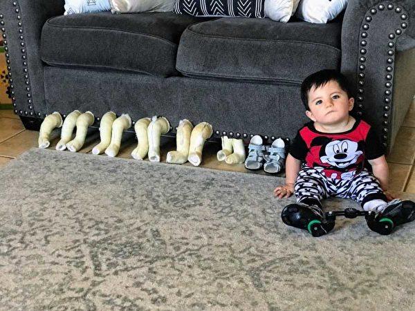 托比亞斯坐在他出生後前三個月所穿的每周石膏板旁邊,慢慢地矯正他的腳。(伊麗莎‧穆迪提供)