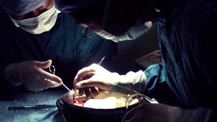 建議將同意捐贈器官作默認選項 復旦教授挨轟