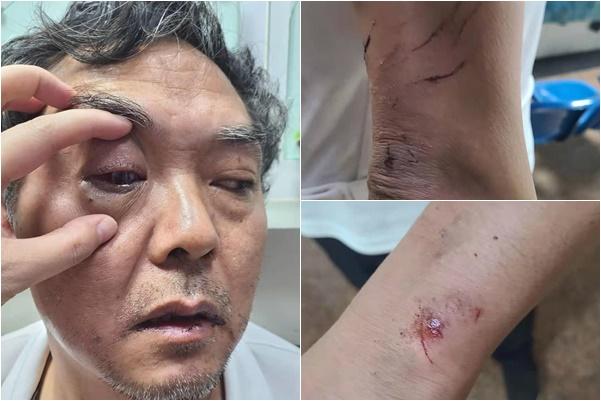 2021年4月19日晚上9時許,中國維權律師陳科雲在位於廣州天河區龍洞林機廠小區散步時,突然遭到數名不明身份男子圍毆,致全身多處受傷。(知情人提供)