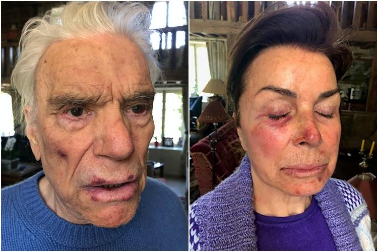 2021年4月4日凌晨,法國大亨阿迪達斯(Adidas)前老闆伯納德·塔皮(Bernard Tapie)和太太遭遇入室搶劫和毆打。(AFP/大紀元)