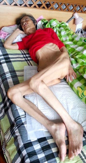 陳麗芝被迫害得奄奄一息、骨瘦如柴。(明慧網)